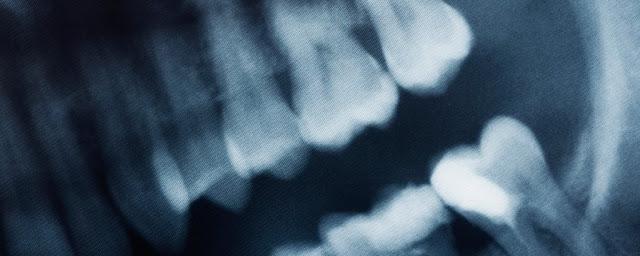 Gli scienziati finalmente sanno perché i denti del giudizio emergono solo quando siamo adulti