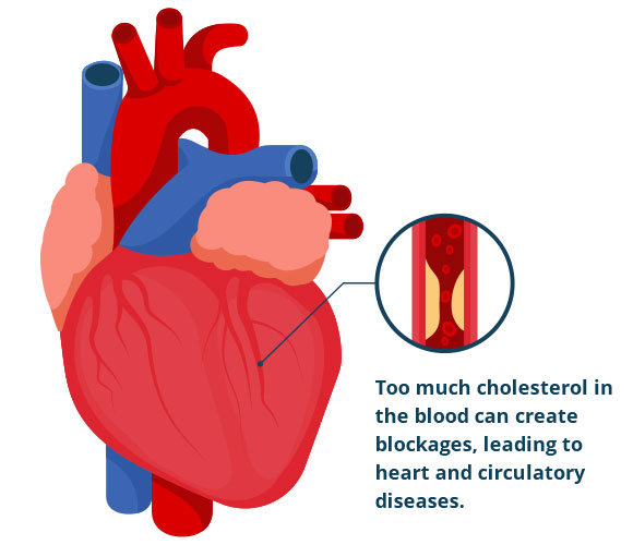The High Cholesterol Review Heart disease and cholesterol What is cholesterol What will you get from The Oxidized Cholesterol Strategy The Oxidized Cholesterol Strategy Pros