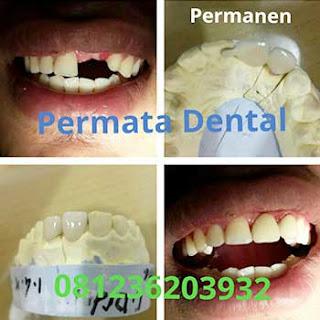 gambar foto proses pemasangan gigi palsu permanen gigi ompong
