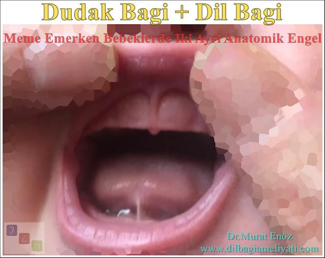"""""""Dil bağı ve dudak bağı"""" bebeklerde emzirmede iki ayrı anatomik engel"""