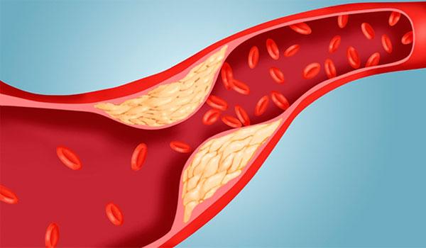 Mengenal Kolesterol, Bahaya, Serta Cara Mengontrolnya