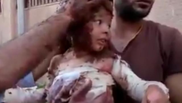 Miris, Bocah Suriah yang Terbakar oleh Bom ini Diobati dengan Lumpur