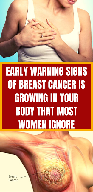 Early Warning Signs Of Breast Cancer Is Growing In Your Body That Most Women Ignore