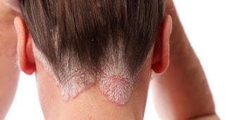 Penyakit Menular Pada Kulit Kepala & Rambut
