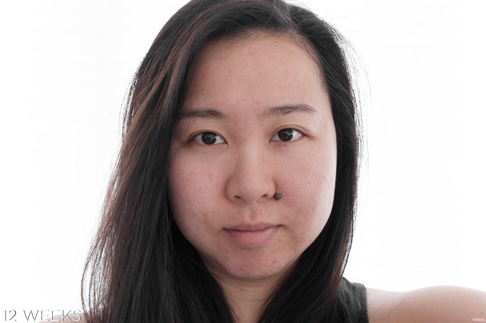 tria Hair Removal Laser Facial Hair 12 Weeks