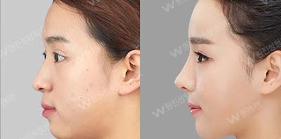 sebelum dan sesudah operasi plastik hidung Korea