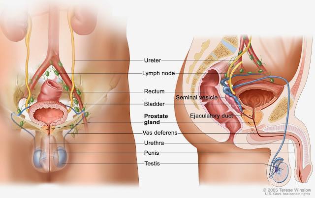 Gejala dan penyebab Kanker Prostat