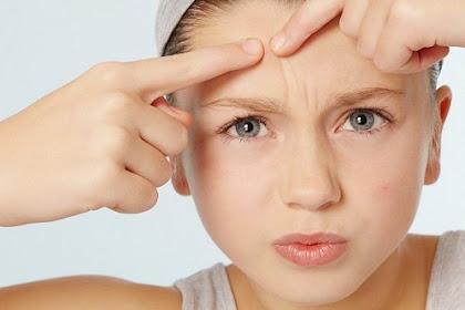7 Perawatan Alami Wajah Berjerawat yang Wajib Kamu Coba!