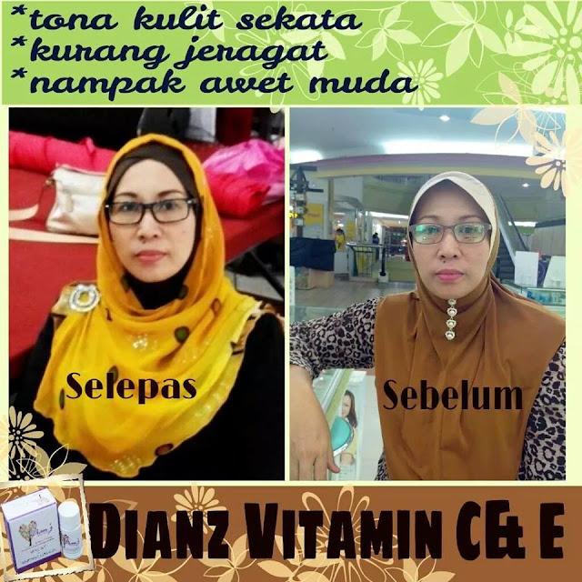 Dianz vitamin c & e whitening collagen