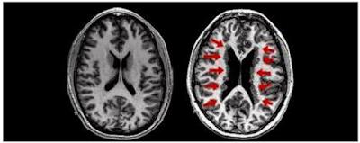 Perbandingan Corpus Collusum Tampak Atas antara otak normal dengan otak penderita disleksia
