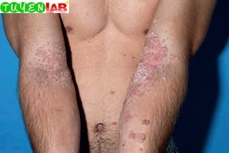 Fig. 5.50 Warts in DOCK8 immunodeficiency