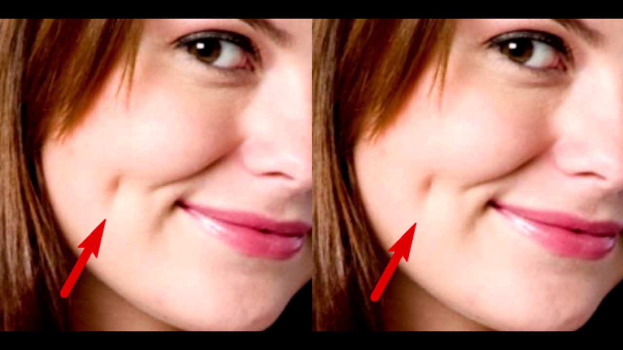 Here Is The Meaning Of The Dimples On The Cheeks