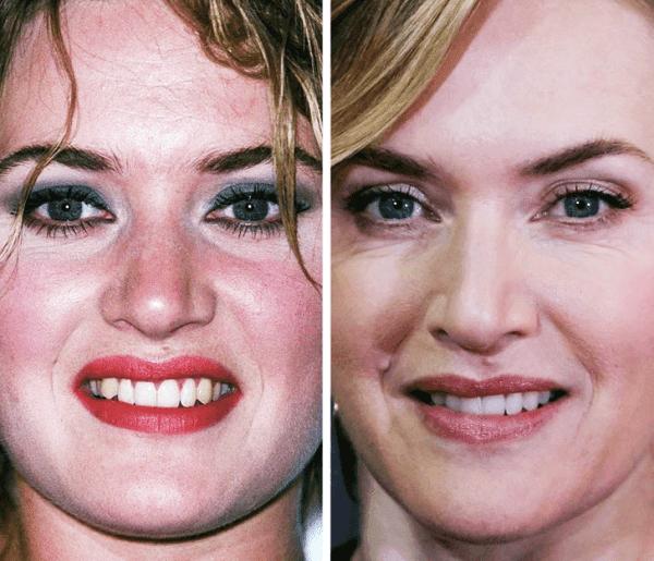 Kate Winslet - 23 Yaş ve 42 Yaş