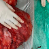 Giant 11 Kg Tumor Successfully Removed from Woman's Abdomen at Zen Multispecialty Hospital, Chembur
