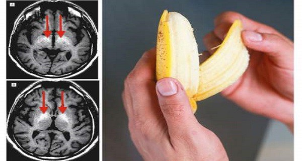 Eat Tree Bananas A Day To Prevent More Than 5 Diseases: Here's Why They Works Better Than Any Other Medications!
