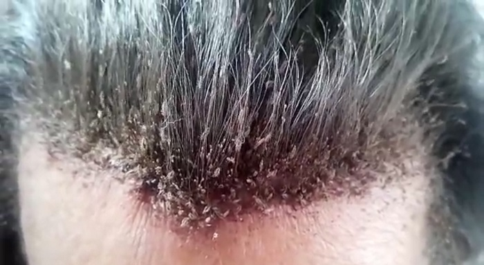 This Could Be The Most Extreme Head Lice Infestation And