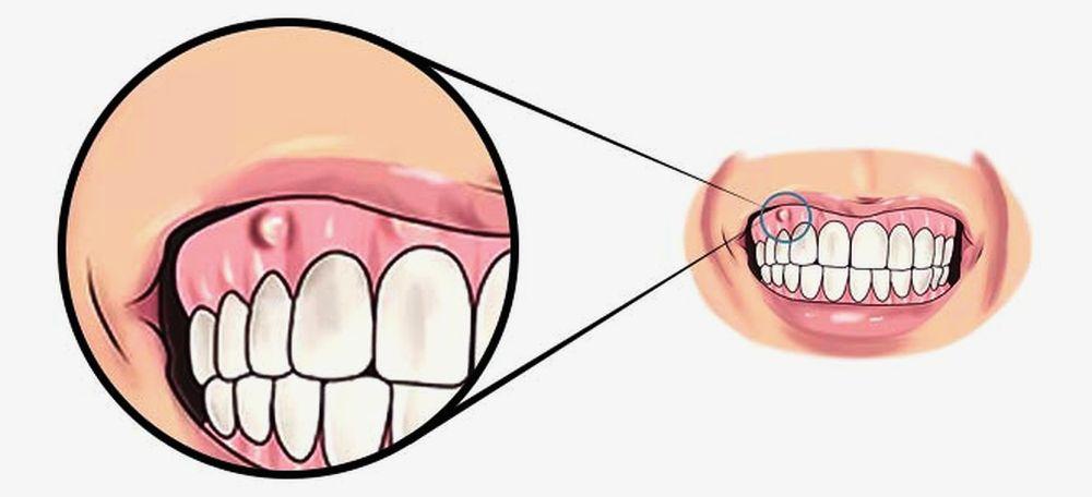 Infecção Dentária