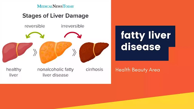 Fatty liver disease eyes || Important Information about Fatty liver disease