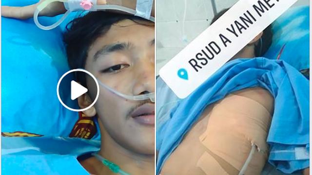 Viral, Kisah Seorang Pemuda yang Paru-Parunya Sudah Tidak Berfungsi Karena Merokok