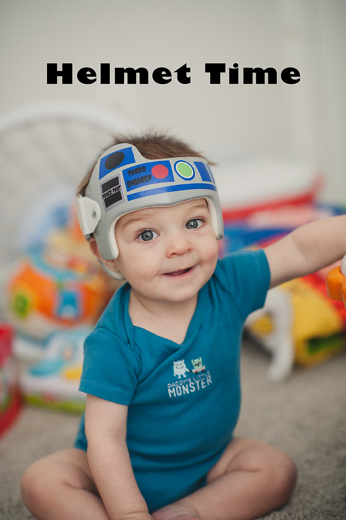 Cranial helmet (doc band) decoration R2D2