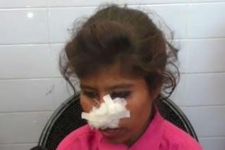 Violent husband bites off his wife's nose