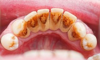 6 Cara Merontokkan Karang Gigi Dengan Cepat Tanpa Efek Samping