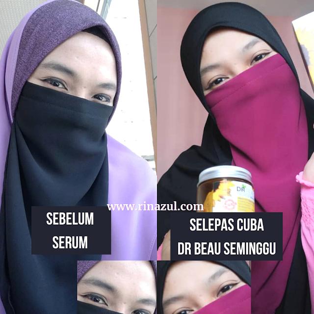 serum dr beau