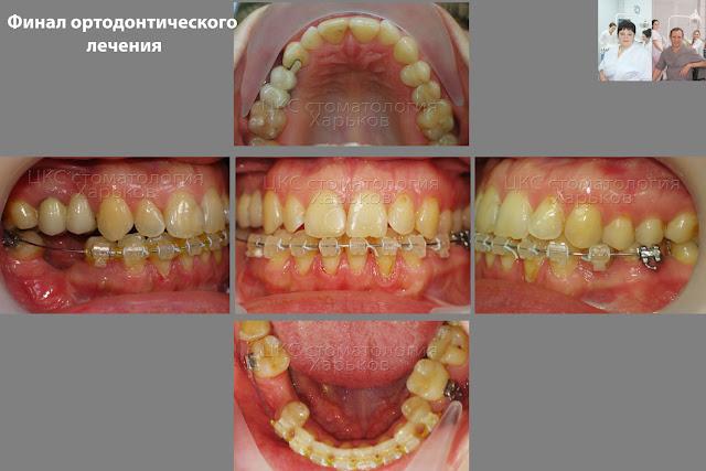 Прикус пациента после ортодонтического лечения