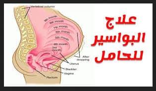 اعشاب علاج بواسير الحمل
