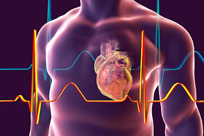 Biomarkers Differentiate Types of Myocardial Infarction or Injury, Study Reveals