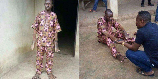 On this 'Photo of a Man who had his hands and legs switched', here is the True Story