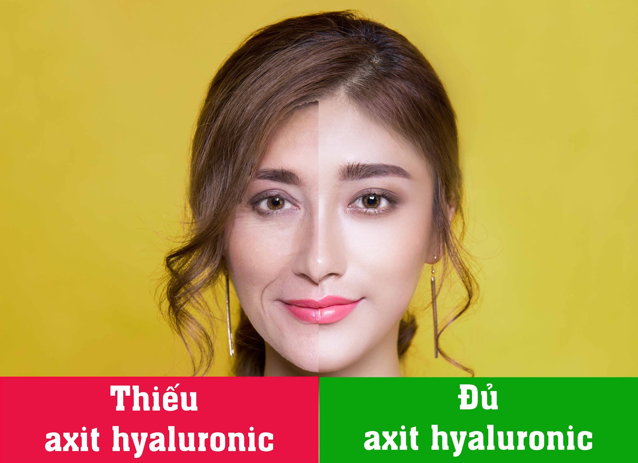 10 lợi ích của axit hyaluronic đối với da