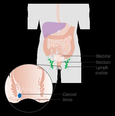 معلومات عن سرطان القناة الشرجية
