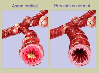 vitamin untuk asma
