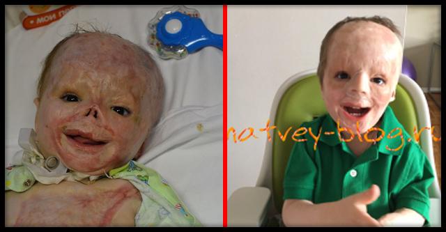 История мальчика, чью жизнь навсегда изменила врачебная халатность