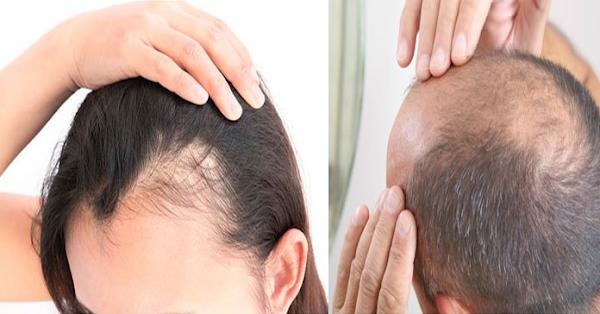 أفضل طريقة لعلاج تساقط الشعر