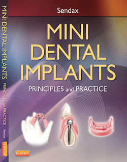 Mini Dental Implants Principles and Practices