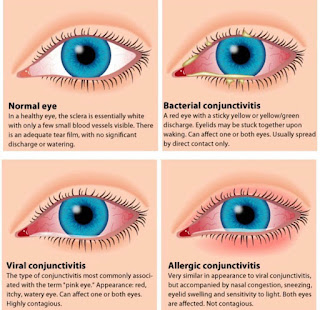Know the Types, Treatments and Prevention of Infectious Eye Disease