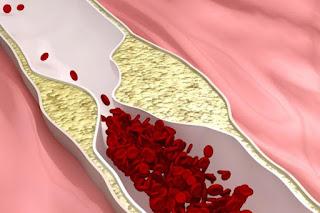 التغذية العلاجية لمرضى التصلب العصيدي atherosclerosis ومرض القلب التاجي coronary heart disease.: