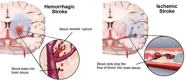 http://www.chennaibrainandspine.com/stroke-treatments.php