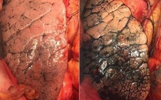 Citizen's Lung in HIMACHAL PRADESH (Left) and Delhi (right)