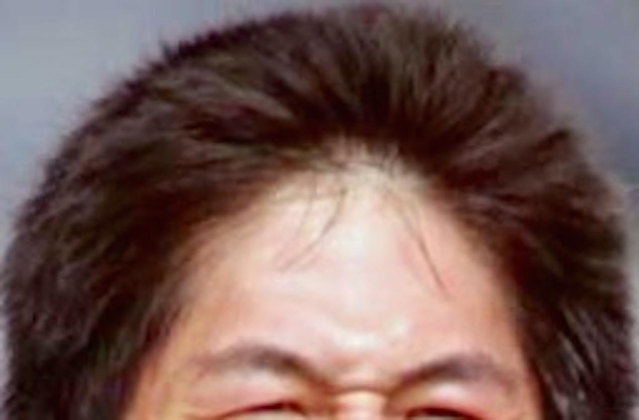 Forum on this topic: Belita, kristi-tsuya-yamaguchi/