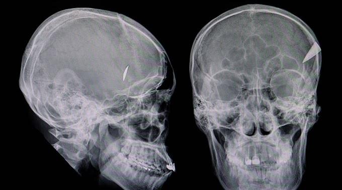 Egy degenerált férfi beletörte édesapja fejébe a kést (videó)