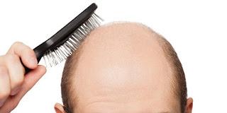 الصلع الوراثي هو السبب الأكثر شيوعًا لفقدان الشعر. الصلع الوراثي ليس مرضًا في الحقيقة ، ولكنه حالة طبيعية ناتجة عن مزيج من الوراثة ومستويات الهرمونات وعملية الشيخوخة.  سوف يلاحظ جميع الرجال والنساء تقريبًا تساقط الشعر مع تقدم العمر، على الرغم من أن التغييرات في النساء