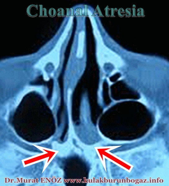 Choanal Atresia, Congenital Nasal Obstruction, Nasal Blockage in Newborn, CHARGE Syndrome, Neonatal Respiratory Distress