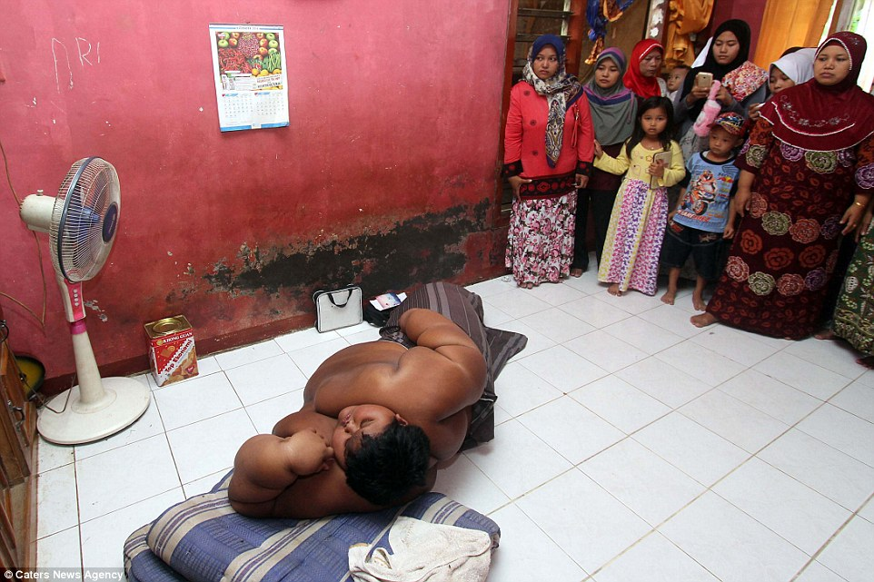 Photos: The Fattest Child In The World Arya Permana Now ...