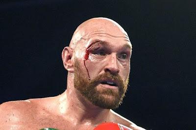 Tyson Fury corte
