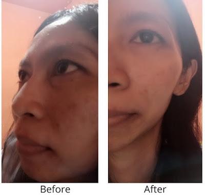 acne scarlett serum