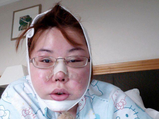 Wanita Ini Habiskan Uang Rp 1,9 Miliar untuk Operasi Plastik Agar Mirip Anime, Hasilnya Bikin Melongo!