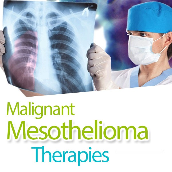 How To Find The Perfect Mesothelioma Law Firm
